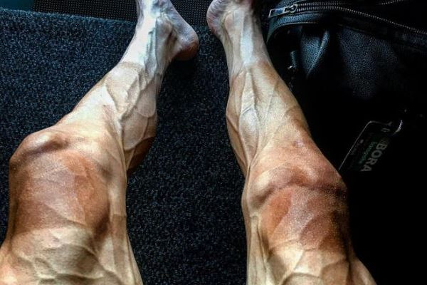 ツール・ド・フランスに出場している選手の両足、レースの過酷さを物語る写真が衝撃的