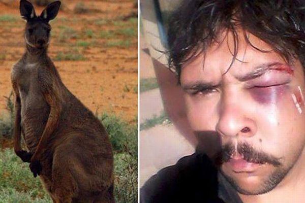 野生のカンガルーがハンターに反撃、男性に頭突きを食らわし顎の骨を折る