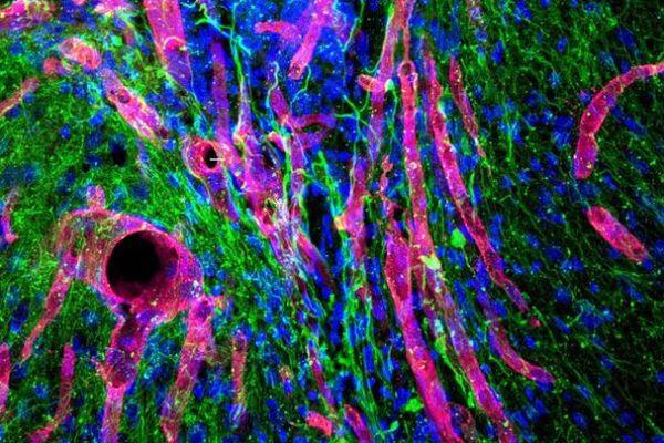 米大学が開発したジェル、マウスの実験で脳卒中による損傷部分の再生に成功