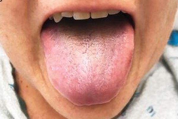 交通事故に遭った女性の舌から黒い毛が生えた!?専門誌が珍しい症例を伝える