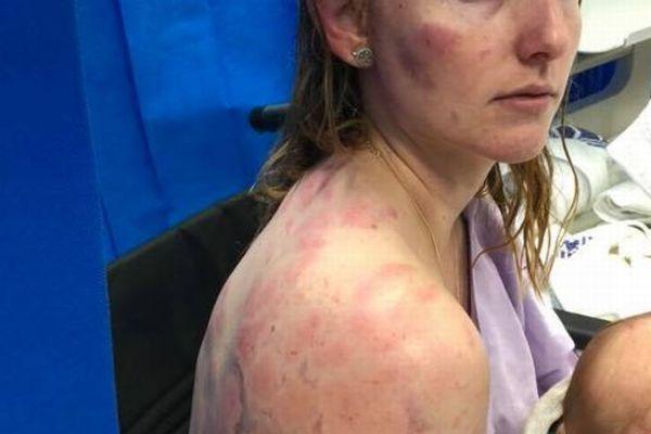 豪北東部で竜巻や嵐が発生、大きな雹に襲われた女性の体が痛々しい