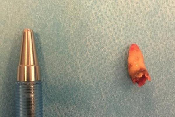 """嗅覚の衰えに悩まされていた男性、下された衝撃の診断は""""鼻の中に歯が生えている"""""""