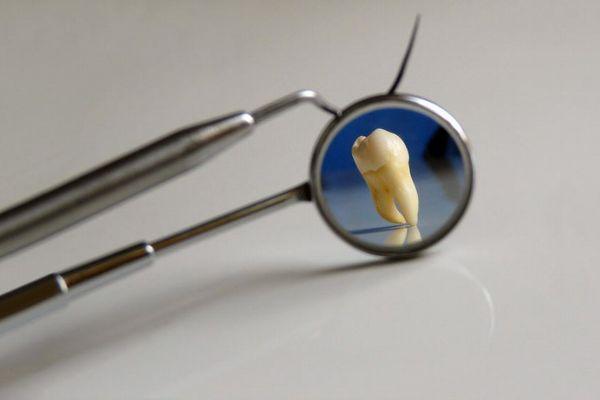 インドで少年が無数の歯を持っていると判明、手術して526本取り除く