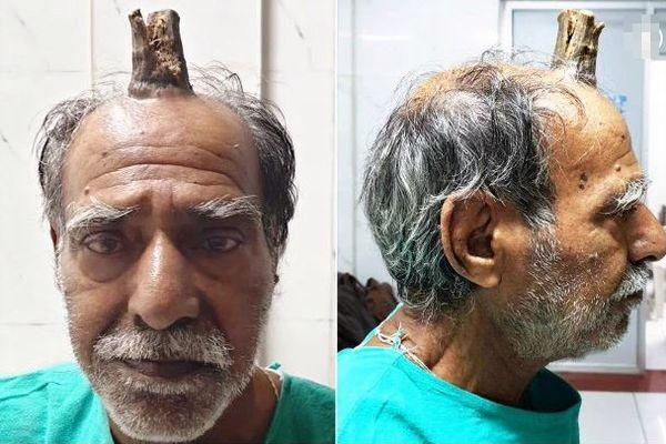 まるで鬼のよう…インド人男性の頭に10cmの角が生えた!