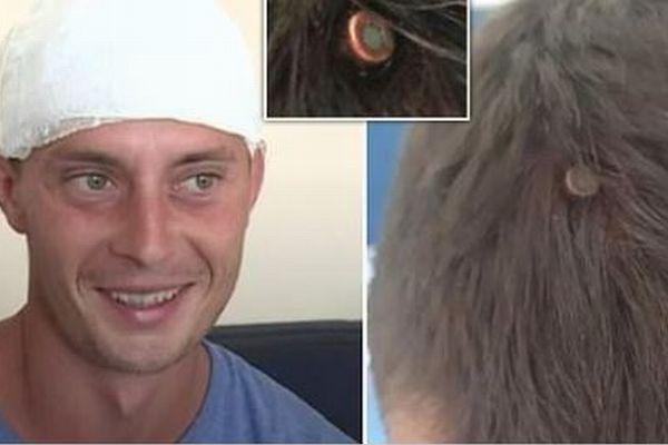 ルーマニアで銃弾が頭蓋骨に食い込み、男性が奇跡的に一命を取りとめる
