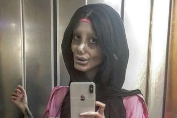 整形までしてアンジェリーナ・ジョリーをパロったイランのインスタグラマーが逮捕される