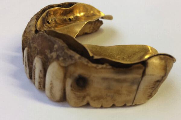 カバの牙と金で出来た200年前の入れ歯が発見される