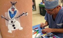 子供の手術創にマンガを描いて癒やす外科医が話題に