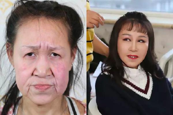 老女に見える15才が整形手術で救われた
