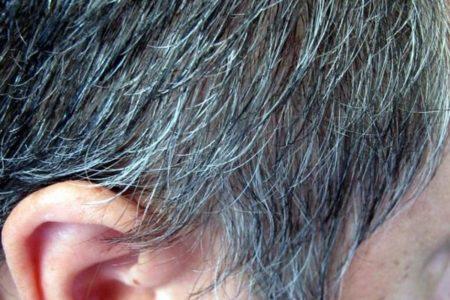 白髪になるのはストレスが原因?実験でマウスの毛並みが真っ白に