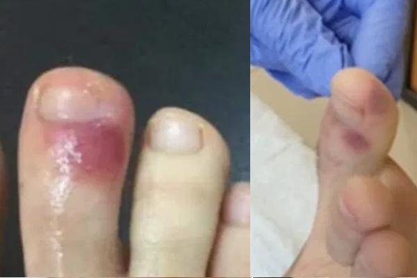 足指の変色は新型コロナの可能性 スペインの医師団が指摘