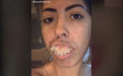 歯が変わっただけで別人に、ブラジル女性のTikTok動画に唖然