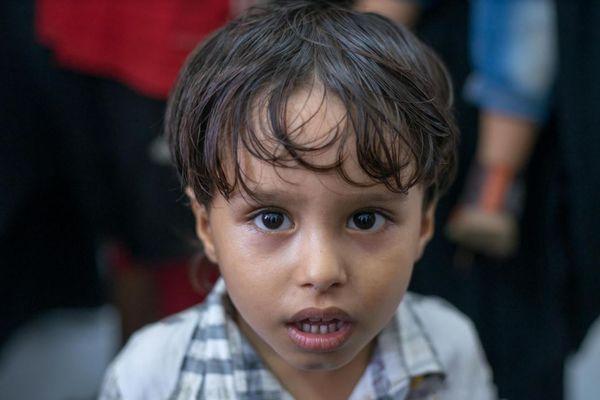 中東のイエメンで子供たちが今後危険な状況に、新型コロナにより支援金が減少