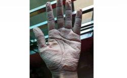 コロナ治療で手袋をはめ続ける医師の手 痛ましい写真が話題に