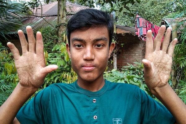 指紋のないバングラデシュの一家、現代では困ることだらけ