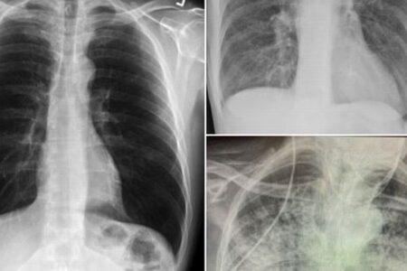 新型コロナ陽性患者の肺、喫煙者よりもひどい胸のX線写真が衝撃的