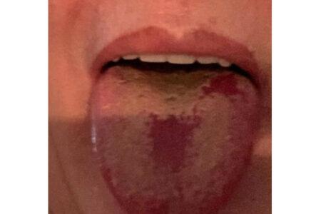 新型コロナウイルスの専門家が、舌に出る症状の写真をツイート