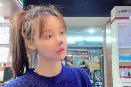 中国の若手女優、整形後に鼻が壊死、自らの写真を投稿し危険性を訴える