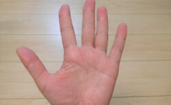 親指どこまで曲がる?隠れた大動脈瘤を知る簡単なテストが、論文として発表された