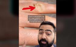夏に備え、皮膚をつまんで脱水状態を知る方法を、ドクターが動画でシェア
