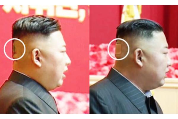 金正恩氏の後頭部に変色と絆創膏、健康状態にさらなる異変か