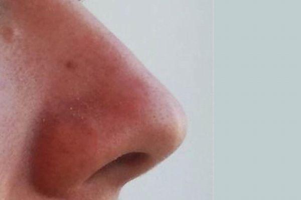 世界で最も大きな鼻を持つ男性とは?未だにギネス世界記録も破られず